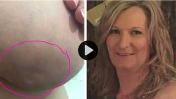 Skin dimpling sign of breast cancer.