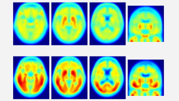 PET scans: healthy brain (top), Alzheimer's (bottom) - Red areas indicate tau deposits.